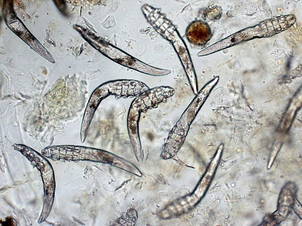 显微镜下的毛囊虫. 取自网路